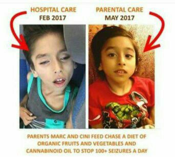 aussie child after cannabis oil 18556047_268126556986621_1502038132261123596_n
